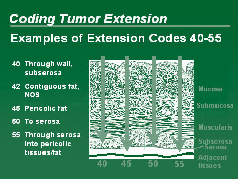 Illustration showing an example of the extension codes 40-55