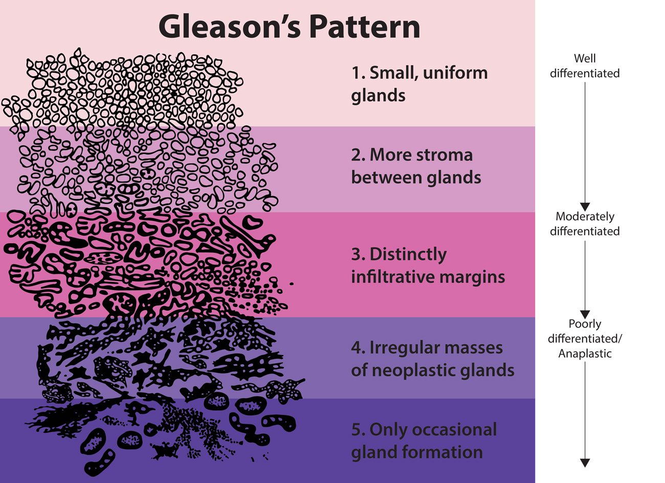 Gleason's Pattern: 1. Small, uniform glands 2. More stroma between glands 3. Distinctly infiltrative margins 4. Irregular masses of neoplastic glands 5. Only occastional gland formation